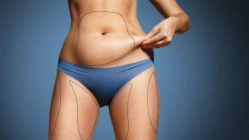 lichaamsvet-kwijtraken