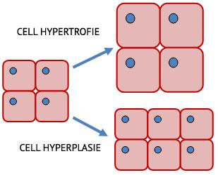 hypertrofie-theorie