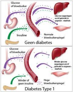 diabetes uitleg