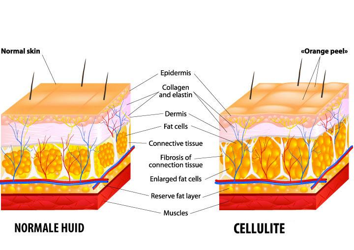 huidstructuur-cellulite