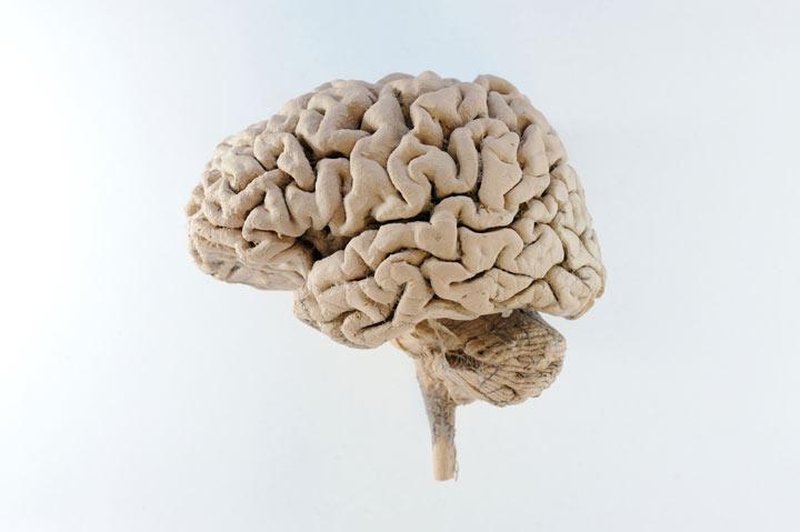hersenen-dom